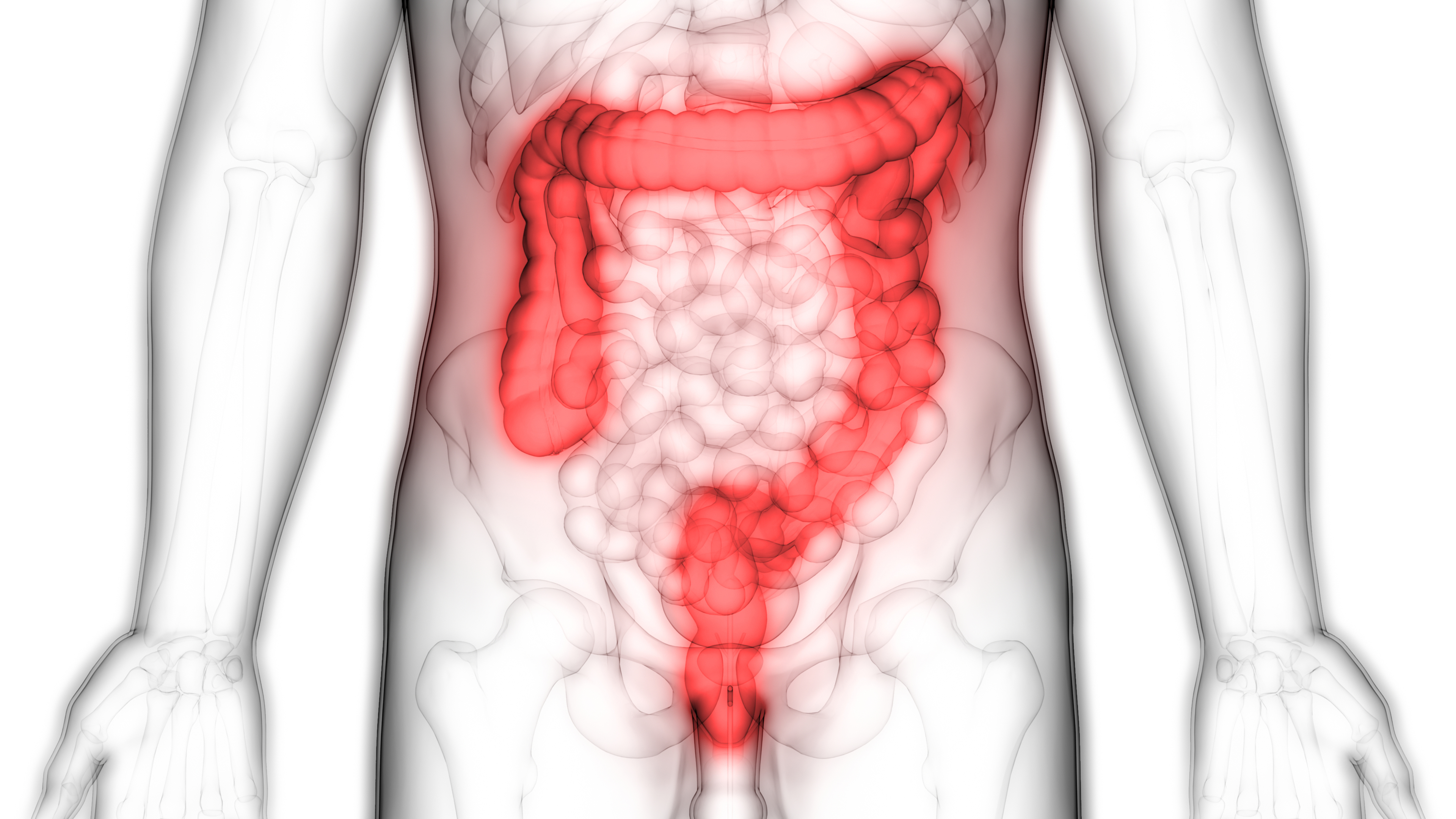 Distinct gut microbiome patterns associate with different subtypes of colorectal cancer